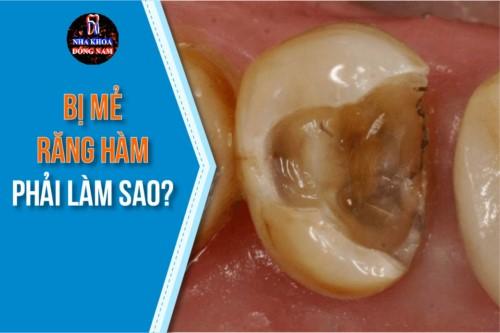 bị mẻ răng hàm phải làm sao