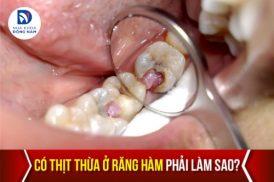 có thịt thừa ở răng hàm phải làm sao