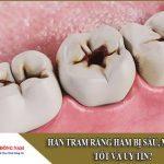 hàn trám răng hàm bị sâu mẻ ở đâu tốt và uy tín
