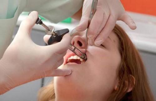 quy trình hàn trám răng
