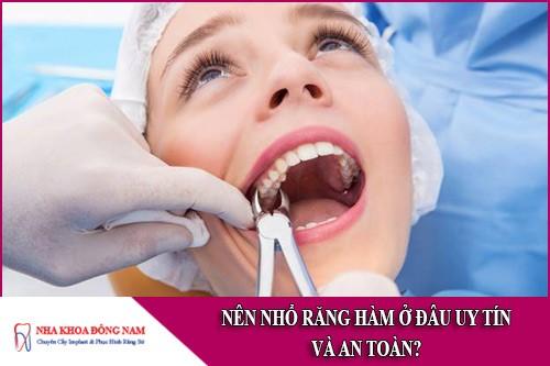nên nhổ răng hàm ở đâu uy tín và an toàn