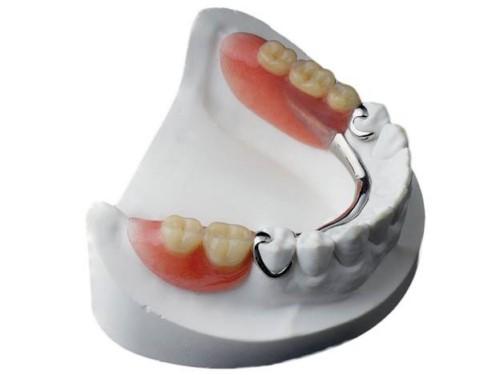 trồng răng giả tháo lắp cho răng hàm