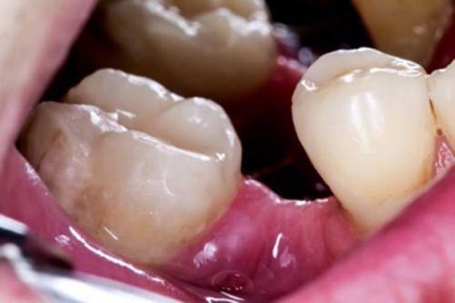 răng bị xô lệch khi mất răng