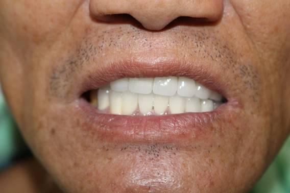 nổi khổ của người bị mất răng