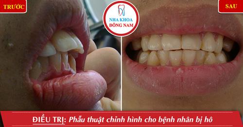 Phẫu thuật chỉnh hình răng cho bệnh nhân bị hô