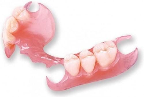 đặc điểm của răng giả tháo lắp nhựa dẻo