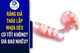 răng giả tháo lắp nhựa dẻo có tốt không? giá bao nhiêu