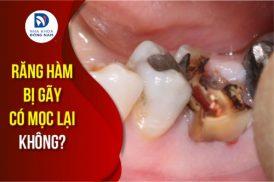 răng hàm bị gãy có mọc lại không