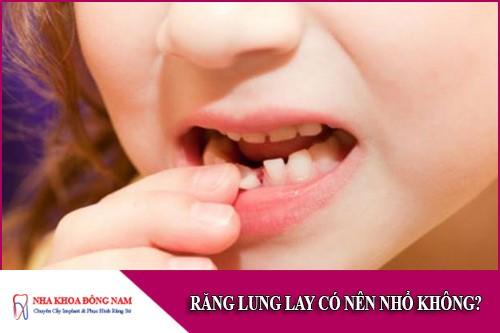 răng lung lay có nên nhổ không