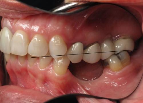 răng lung lay xô lệch