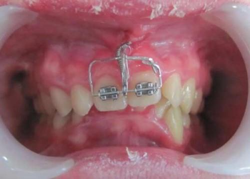 khắc phục răng lung lay