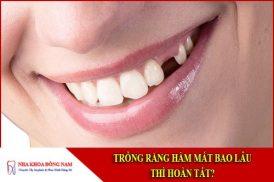 trồng răng hàm mất bao lâu thì hoàn tất