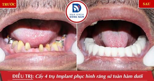 trồng 4 trụ implant răng hàm dưới