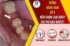 trồng răng hàm số 6 giá bao nhiêu