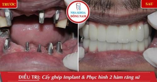 cấy implant và phục hình sứ 2 hàm