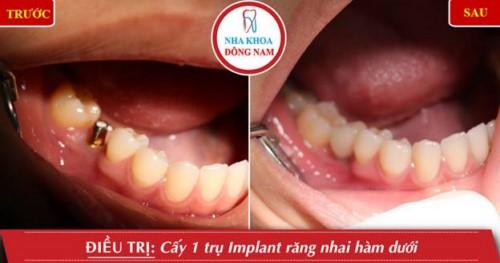 cấy 1 trụ răng nhai hàm dưới