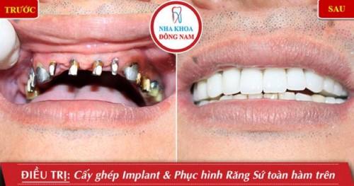 cấy implant hàm trên