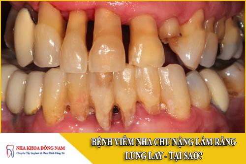 bệnh viêm nha chu nặng làm răng lung lay