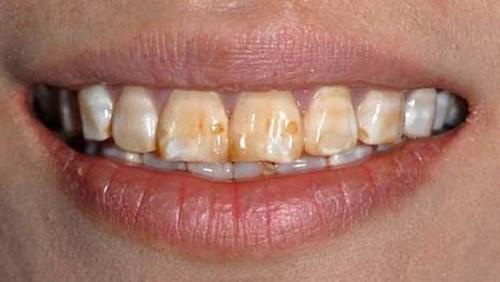 nguyên nhân mòn răng