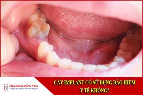 cấy implant có sử dụng bảo hiểm y tế không