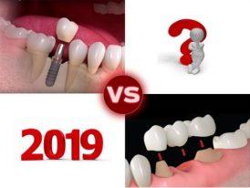 [Xu hướng 2019] Cấy Implant hay trồng răng sứ khi mất răng