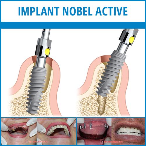 implant nobel active