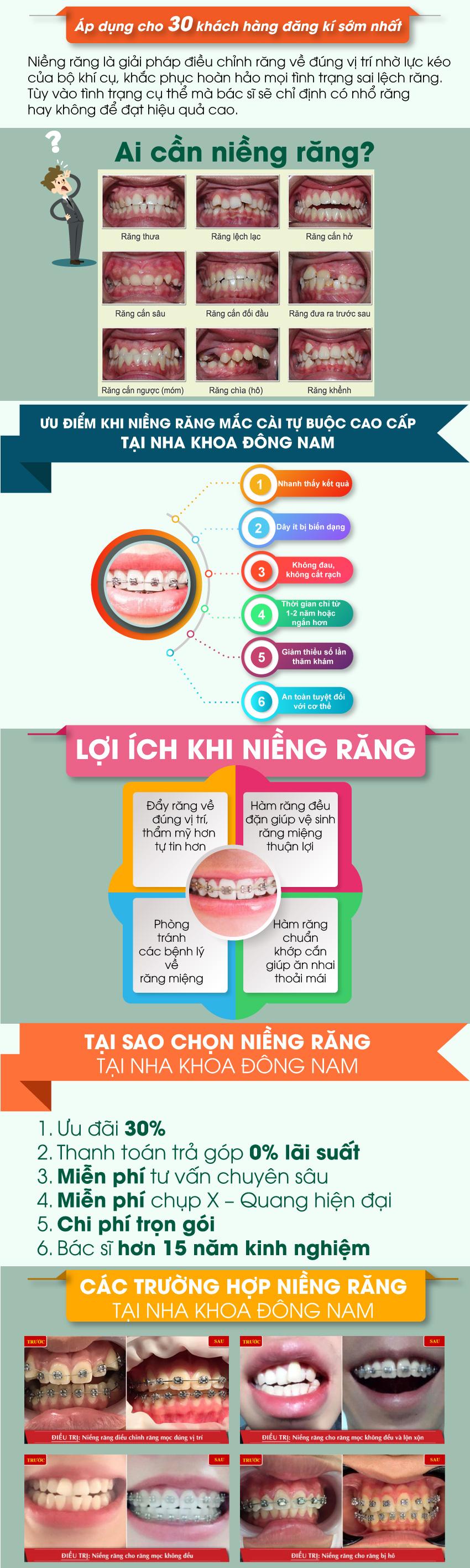 Chương trình khuyến mãi cấy ghép răng Implant