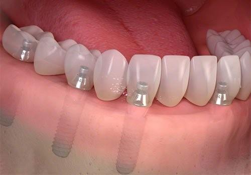 mất hết răng cấy bao nhiêu trụ implant