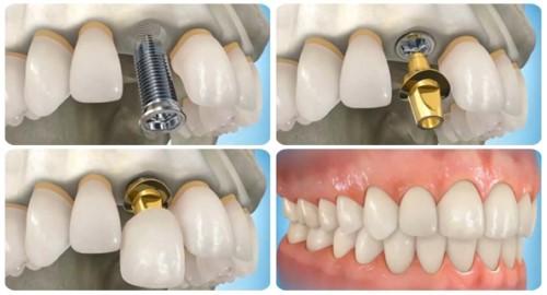 kỹ thuật cấy ghép trụ implant