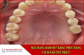 mất răng hàm số 7 khắc phục bằng cách nào tốt nhất