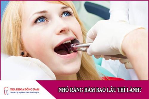 nhổ răng hàm bao lâu thì lành