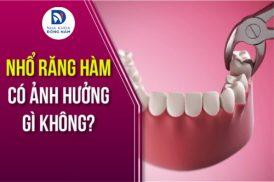 Nhổ răng hàm có ảnh hưởng gì không