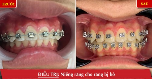 Khách hàng chỉnh nha niềng răng cho răng hô