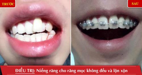 niềng răng cho răng mọc không đều