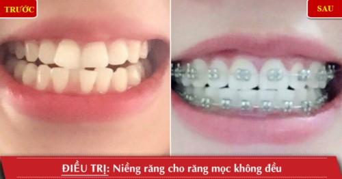 Khách hàng chỉnh nha niềng răng tại nha khoa