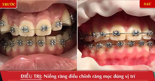 niềng rang điều chỉnh răng mọc đúng vị trí