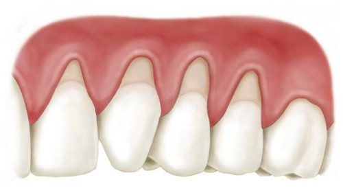 răng bị tụt nướu