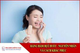 nguyên nhân và cách khắc phục răng hàm bị ê buốt