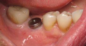 [Hỏi Đáp] Răng Implant có bền không?