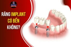 răng implant có bền không