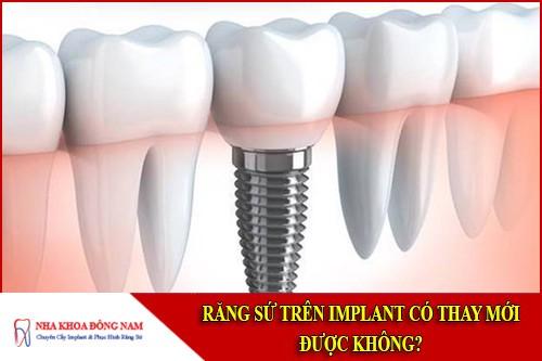 răng sứ trên implant có thay mới được không
