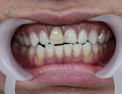 hiện tượng đen viền nướu răng
