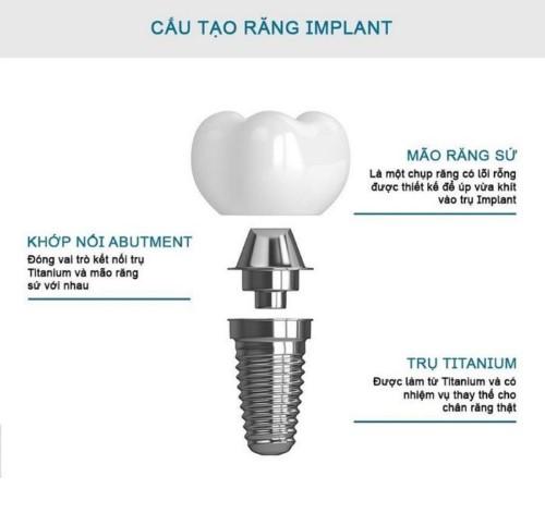 cấu trúc của răng implant