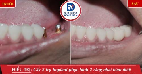 trồng 2 trụ implant răng nhai hàm dưới