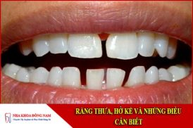 răng thưa hở kẽ và những điều cần biết
