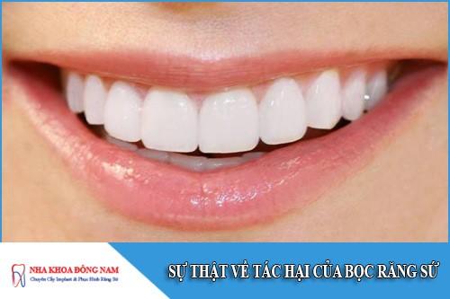 sự thật về tác hại của bọc răng sứ