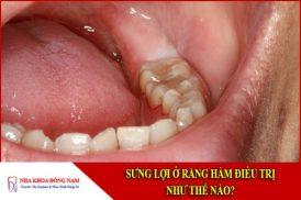 sưng lợi ở răng hàm điều trị như thế nào