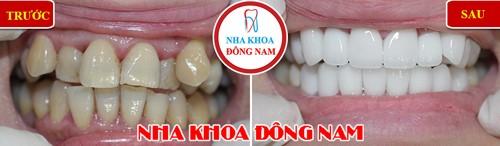 bọc sứ 2 hàm răng ố vàng và lộn xộn