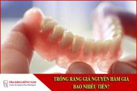 trồng răng giả nguyên hàm giá bao nhiêu tiền