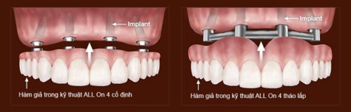 implant all on 4